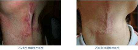 le laser pour les cicatrices
